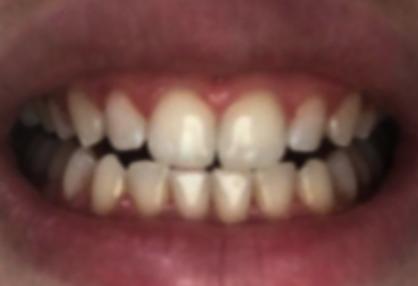 teeth after photo